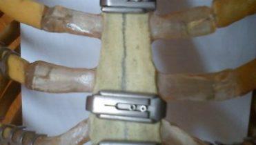 Sternal clips Extralock