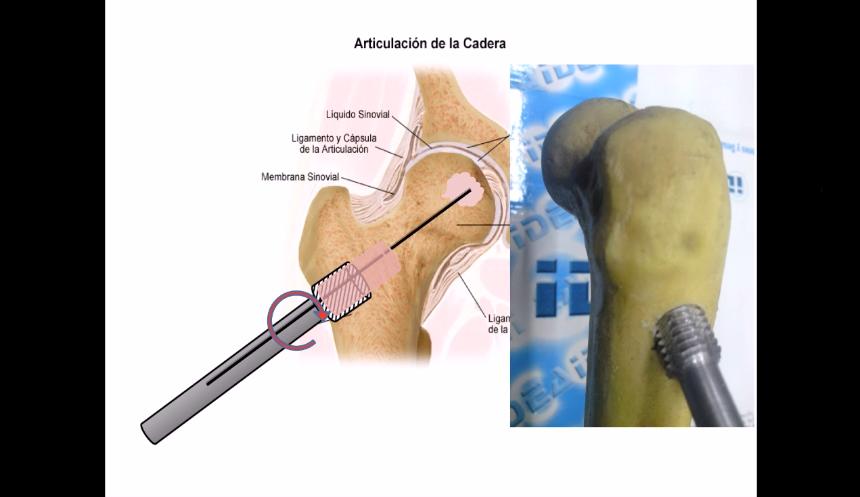 Bone aseptic necrosis percutaneus graft impactation