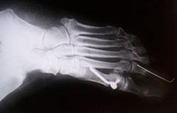 Implante SOMIREP