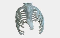Prototipados óseos