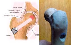 SIP sistema de Impactacion Percutaneo para necrosis de cadera